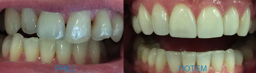 Zobne luske so keramične prevleke