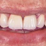Zobne luske za doseganje prečudovitega nasmeha